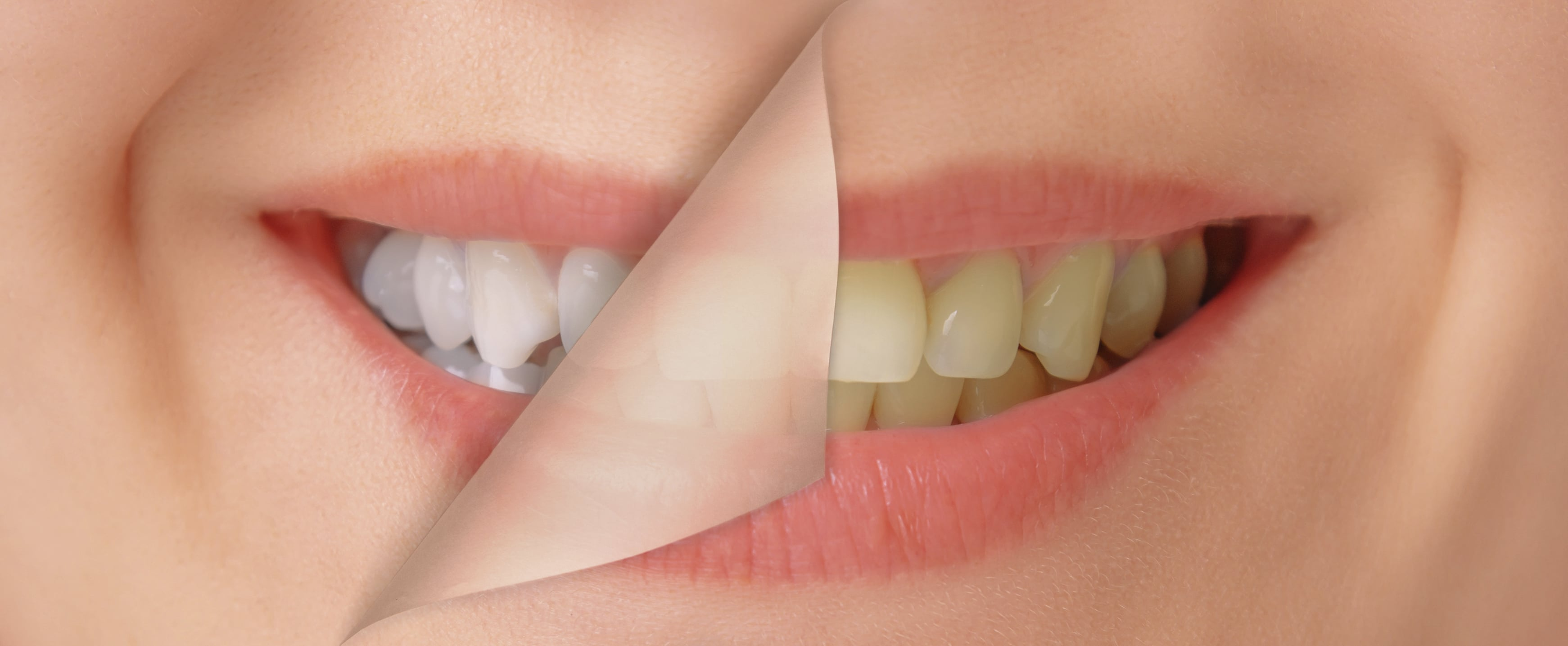 Blanqueamiento dental: Resolviendo dudas
