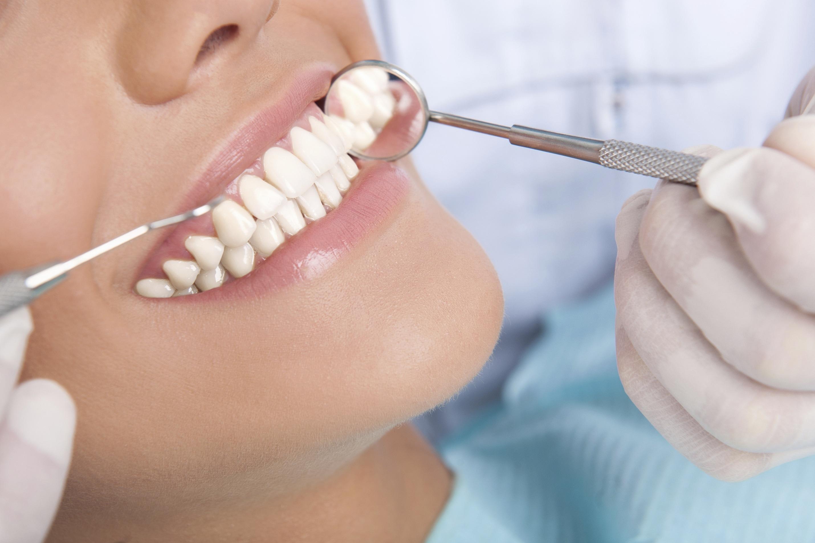 El mantenimiento periodontal